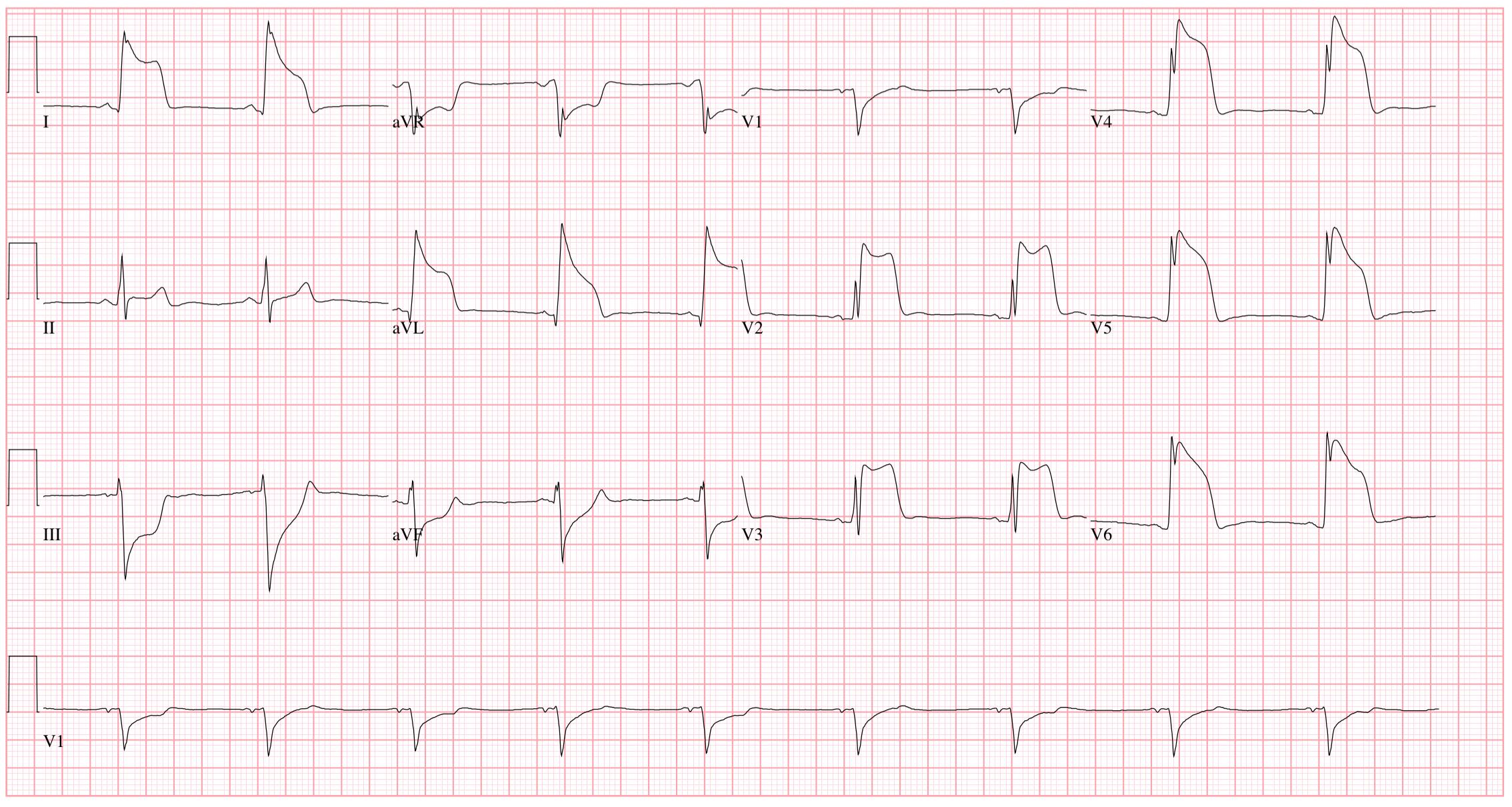 EKG a magas vérnyomás következtetésére mágnesek magas vérnyomás kezelésére
