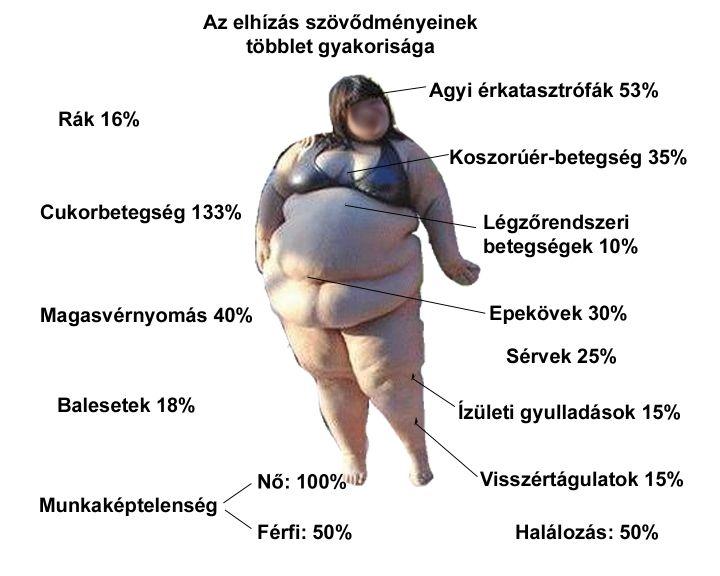 elhízás cukorbetegség magas vérnyomás