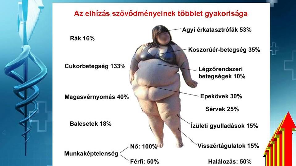 elhízás hipertónia kezelése