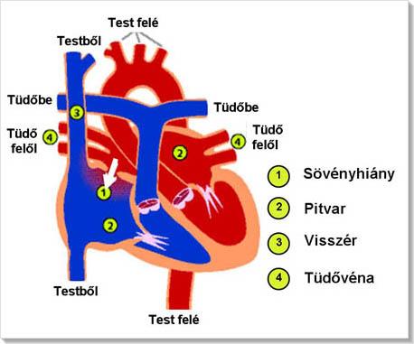 ASD 2 A magas vérnyomás kezelése