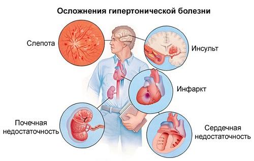 hipertónia annak típusai