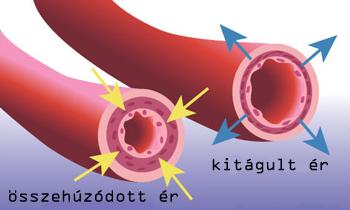 vese magas vérnyomás szindróma
