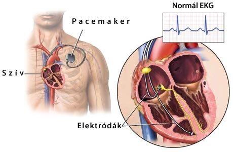 miért alakul a hipertónia hipotenzióvá magas vérnyomás woodlice kezelése