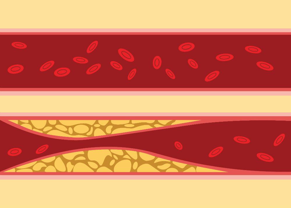mit okozhat a magas vérnyomás magas vérnyomás 2 fok milyen gyógyszerek