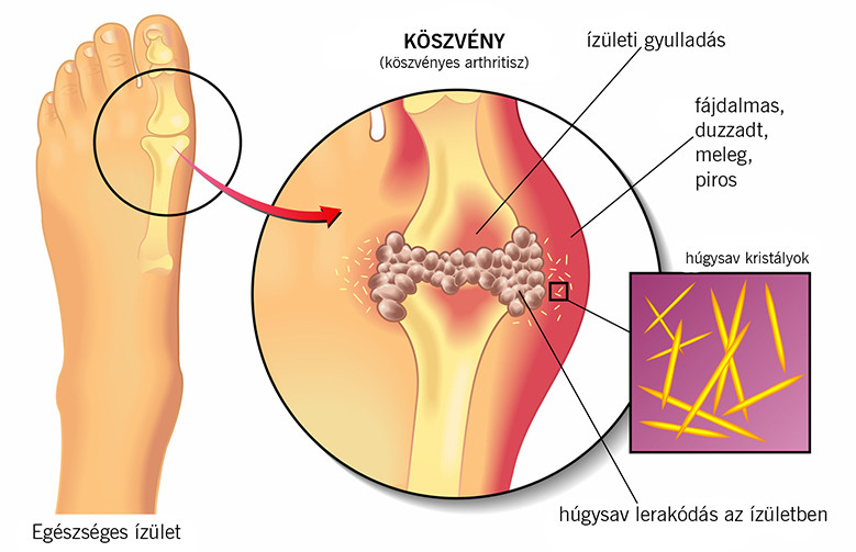 vizelethajtók köszvény és magas vérnyomás esetén)
